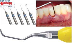 Những điều cần biết về tụt lợi chân răng