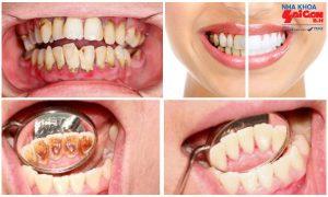 Tác dụng của lấy cao răng với sức khỏe răng miệng