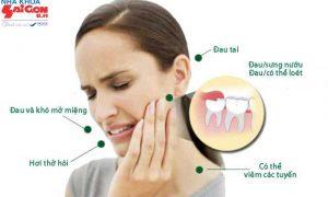 Viêm lợi trùm răng khôn và cách điều trị