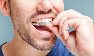 Niềng răng invisalign – giải pháp chỉnh nha ít đau, không lo xấu
