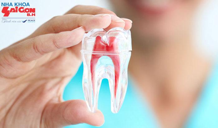 Những điều cần biết trước khi tiến hành chữa tủy răng
