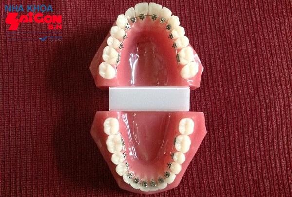Những điều cần biết về niềng răng mắc cài mặt lưỡi