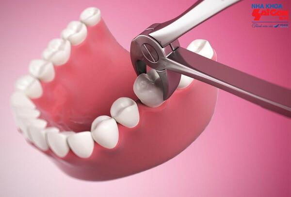 Nên nhổ răng trong trường hợp nào?