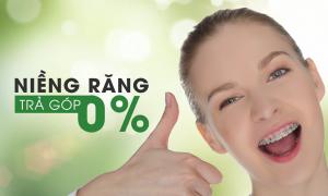Dịch vụ niềng răng trả góp không lãi suất uy tín-Nha Khoa Sài Gòn B.H
