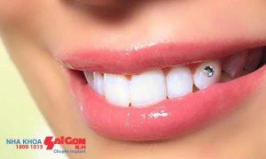 8 điều cần biết trước khi chọn đính đá vào răng