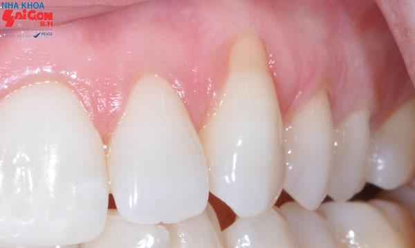 5 cách chữa tụt lợi chân răng ngay tại nhà