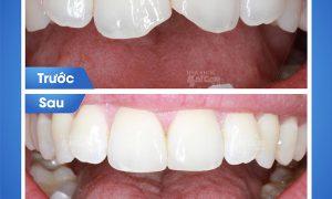 Trám răng sâu có sử dụng được lâu không?