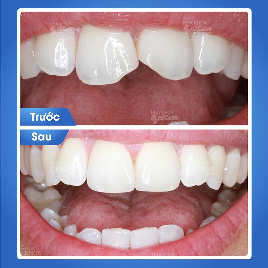 Trám răng sâu có sử dụng được lâu không? - Công ty TNHH Nha Khoa SÀI GÒN B.H