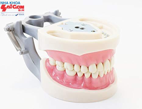 Trồng răng sứ nguyên hàm giá bao nhiêu tiền