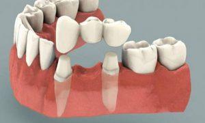 Trồng răng sứ – giải pháp tối ưu cho người mất răng lâu năm