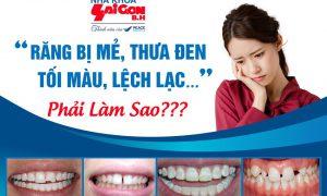 Vì sao răng bị ê buốt sau khi bọc sứ?
