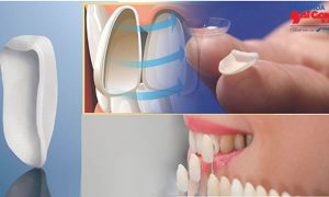 Tham khảo dán răng sứ E.max Press giá bao nhiêu?