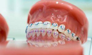 Trồng răng giả có niềng được không? Vì sao?