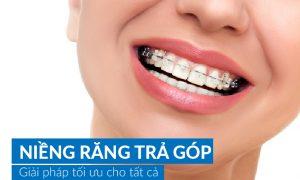 Niềng răng an toàn tại nha khoa niềng răng chuyên sâu