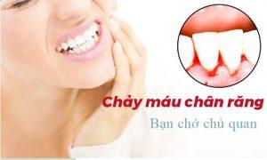 Chảy máu chân răng là thiếu chất gì? Cần điều trị như thế nào?