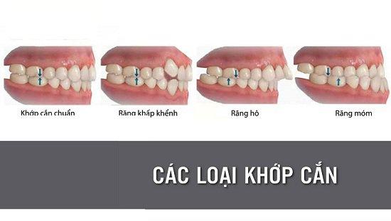 Các trường hợp răng bị lệch khớp cắn và cách điều trị