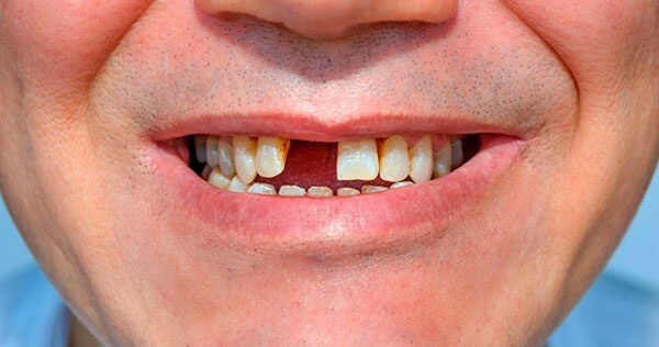 Trồng răng cửa Implant cố định – Bảo Hành Mãi Mãi