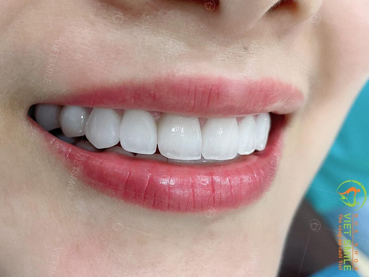 Xử lý răng thưa an toàn hiệu quả