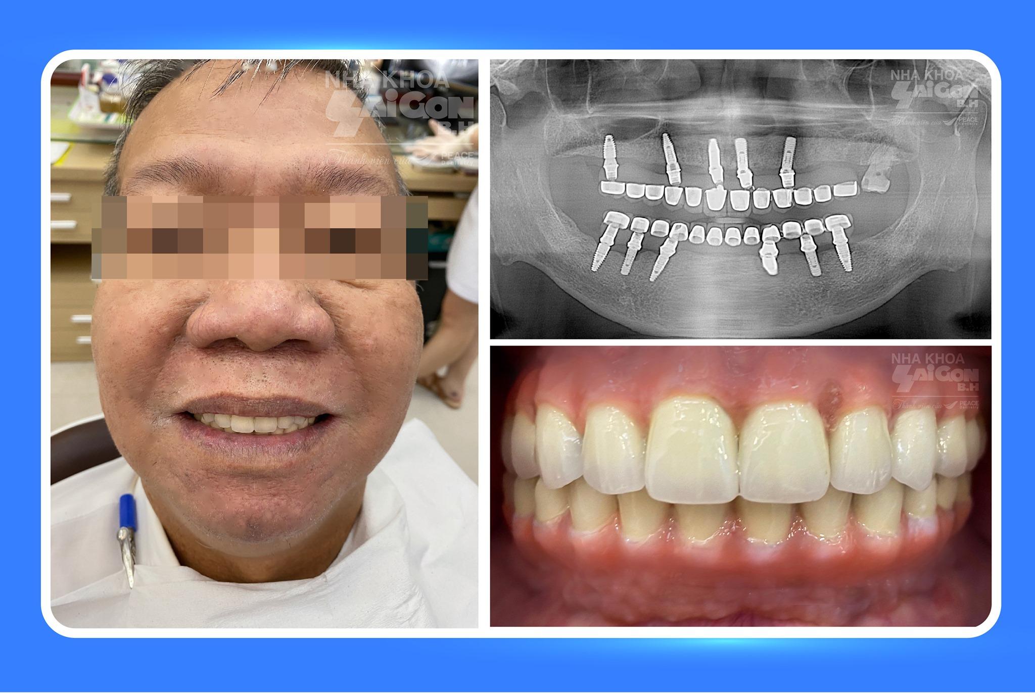 khach-hang-sau-khi-cay-ghep-implant
