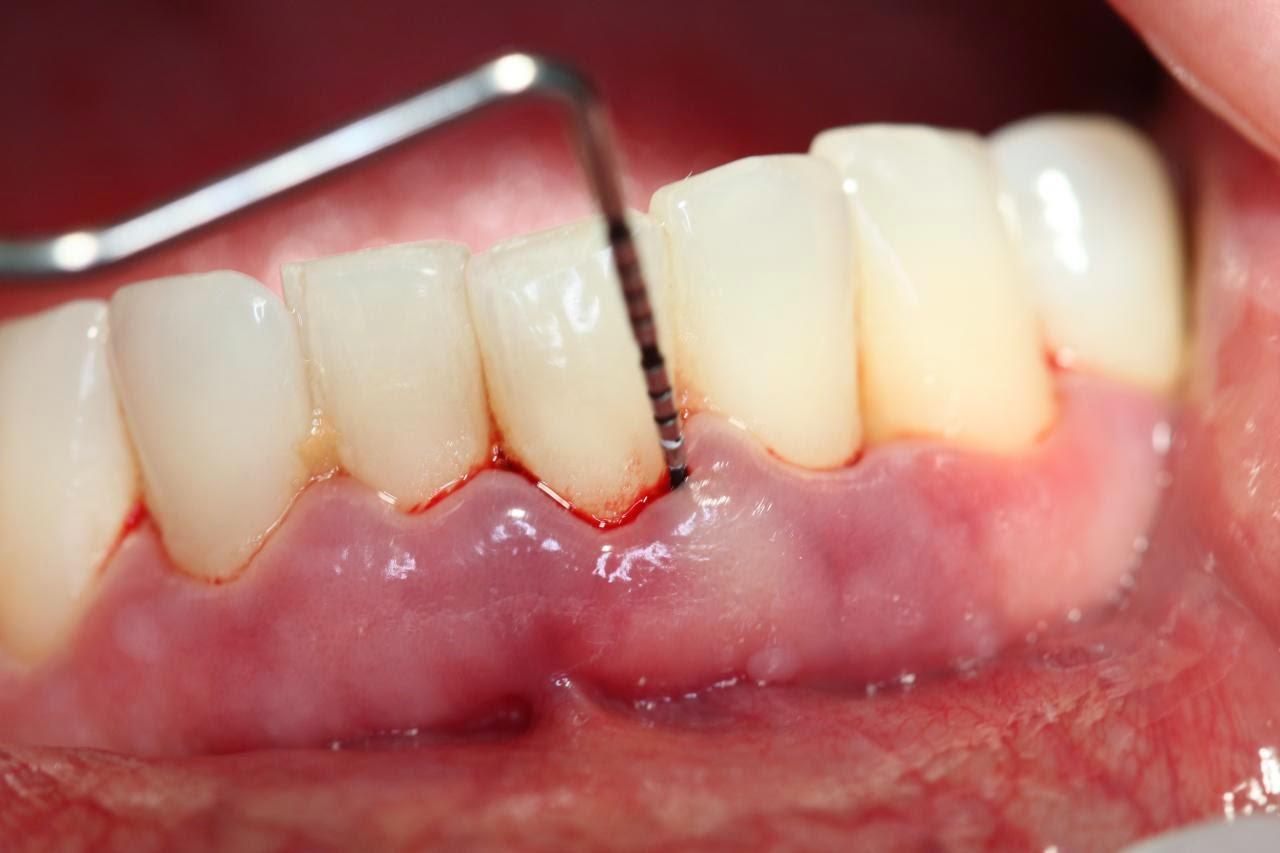 Cao răng viêm lợi: Nguyên nhân và cách điều trị ra sao?