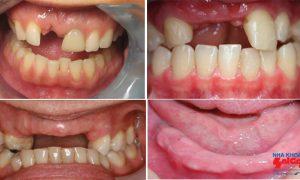 Thông tin cần biết về trồng răng implant nguyên hàm