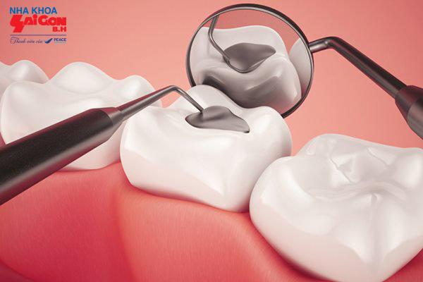 Tư vấn trám răng sâu có nguy hiểm không?