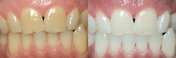 Dấu hiệu của răng nhiễm kháng sinh là gì?