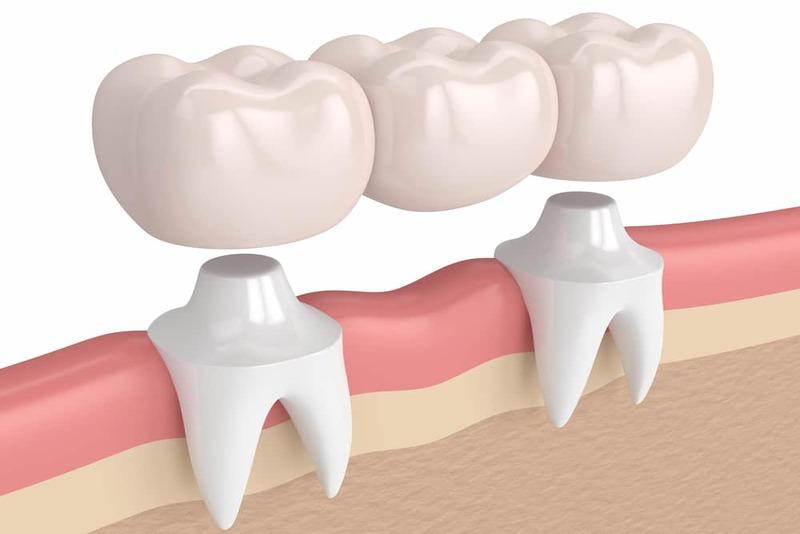Giải pháp khắc phục triệt để tình trạng làm cầu răng sứ bị viêm lợi