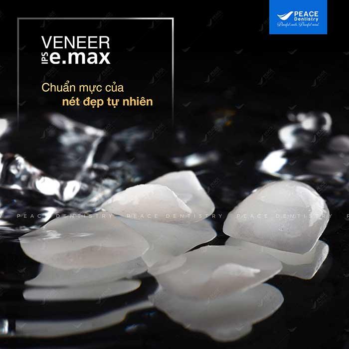 veneer-emax