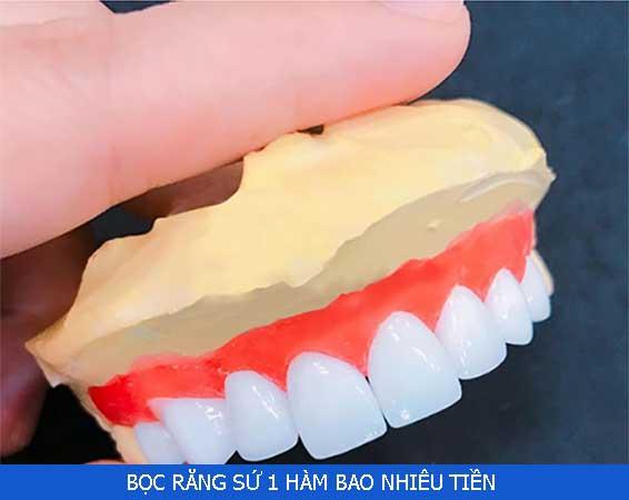 boc-su-1-ham-bao-nhieu-tien-