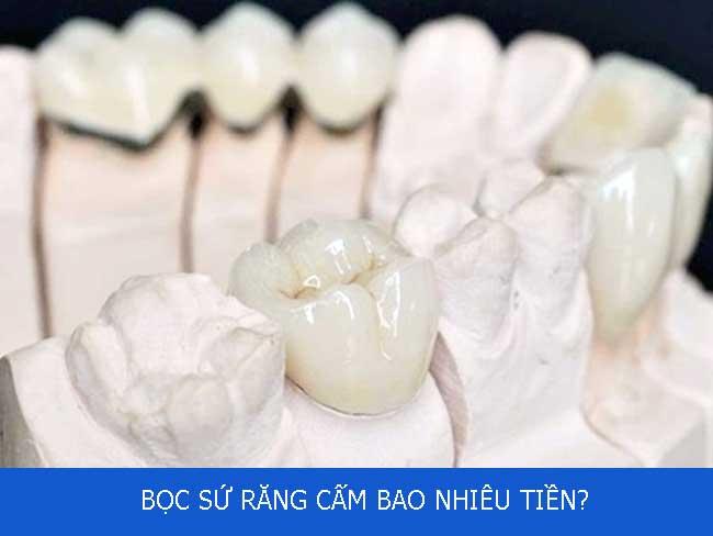 boc-su-rang-cam