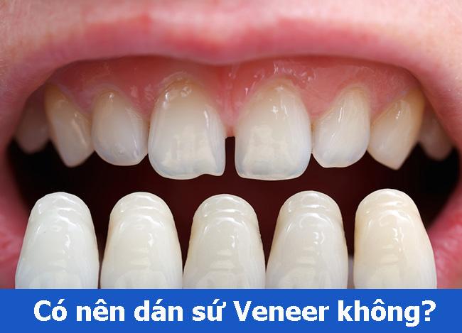 Thắc mắc có nên dán mặt răng sứ veneer không