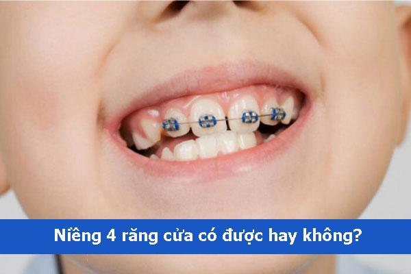 Niềng 4 răng cửa có được không? Giá bao nhiêu tiền