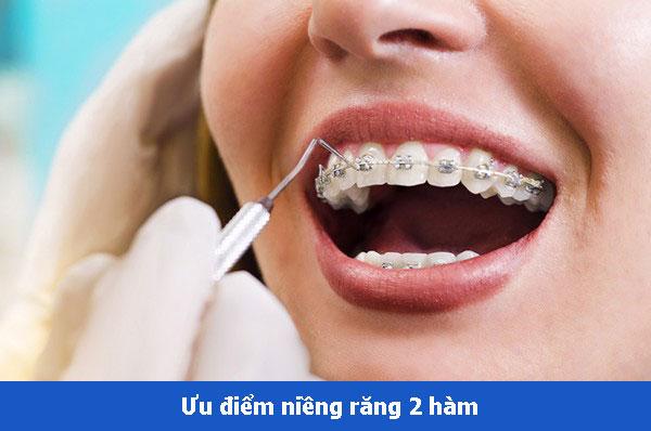 Bảng giá niềng răng 2 hàm bao nhiêu tiền