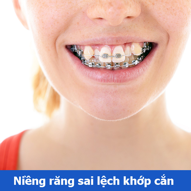 Niềng răng sai lệch khớp cắn bao nhiêu tiền
