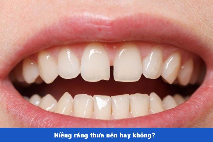 Chi phí niềng răng thưa giá bao nhiêu tiền? Niềng trong bao lâu