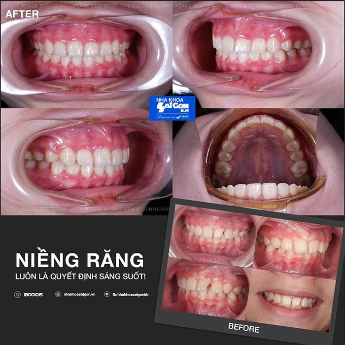 nieng-rang-thua
