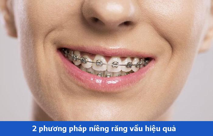 2 phương pháp niềng răng hô vẩu – Giá hết bao nhiêu tiền