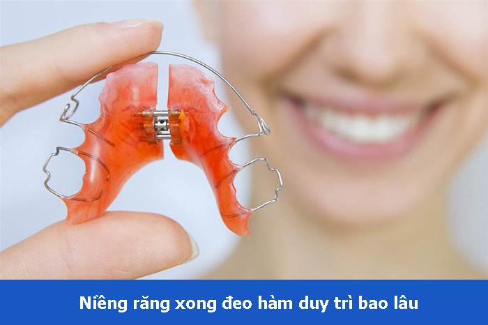 Sau khi niềng răng xong phải đeo hàm duy trì bao lâu