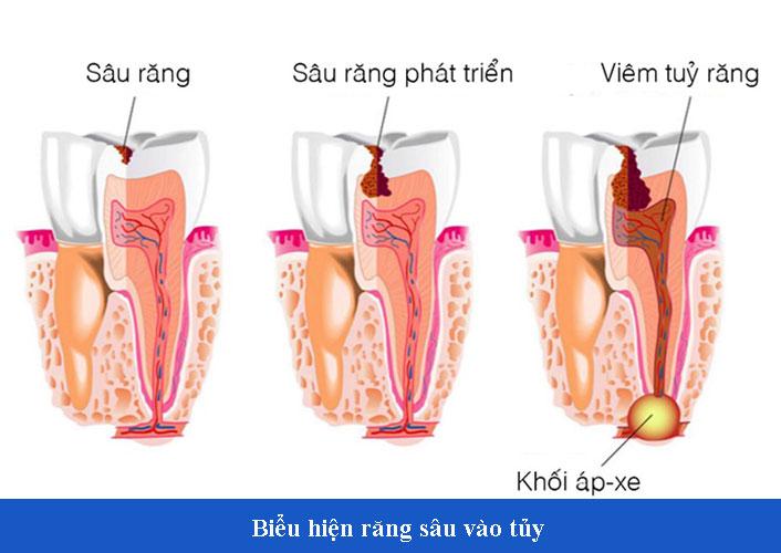 Những biểu hiện răng sâu vào tủy phổ biến, cần xử lý ngay
