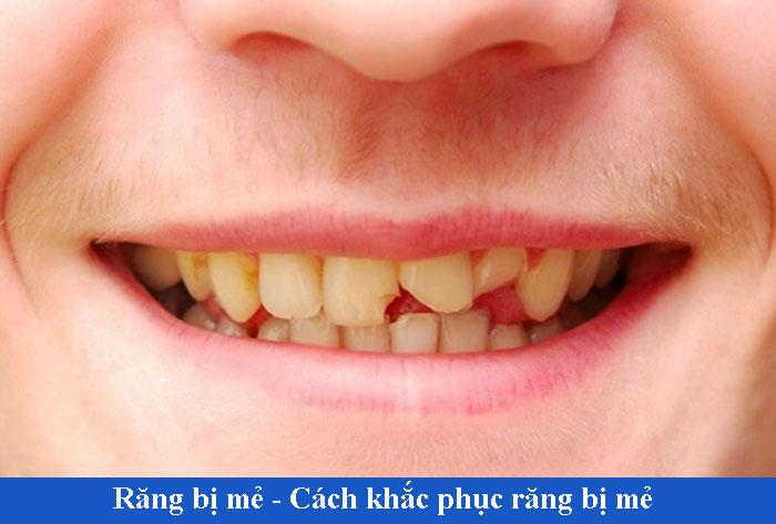 Răng bị mẻ để lâu có sao không? Cách khắc phục răng mẻ