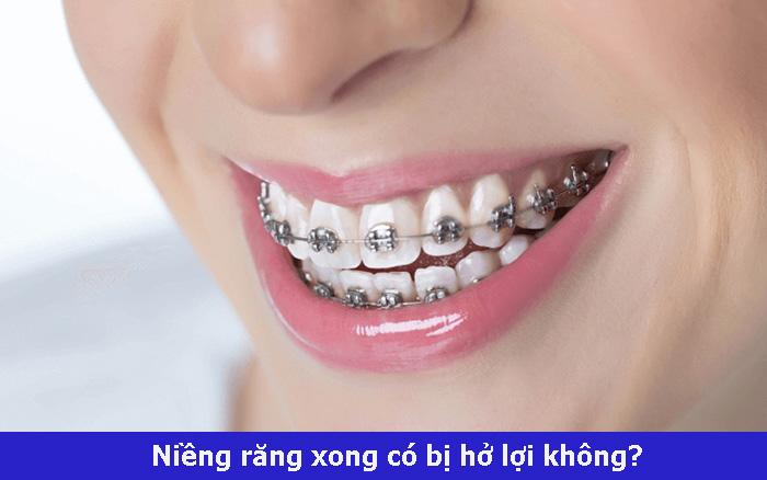 nguyen-nhan-nieng-rang-bi-ho-loi-hay-khong