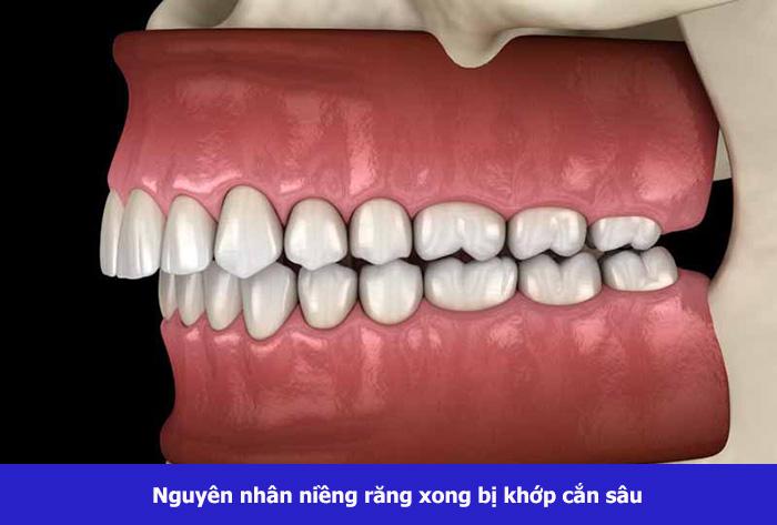 nieng-rang-khop-can-sau