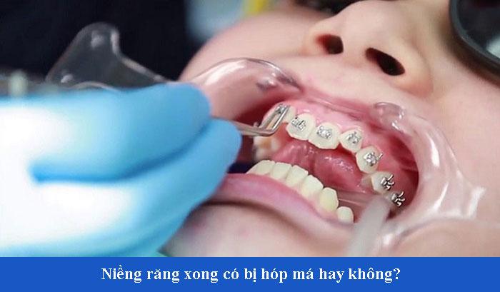 nieng-rang-xong-co-bi-hop-ma