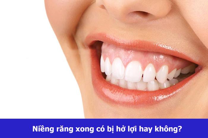 nieng-rang-xong-cuoi-ho-loi