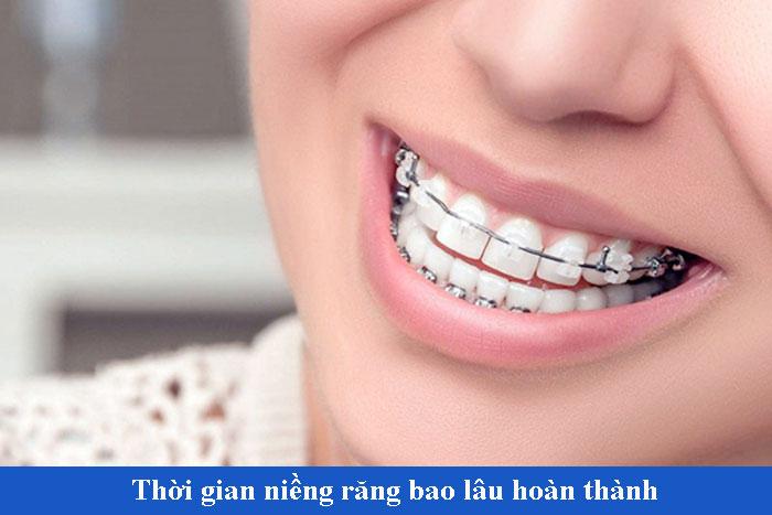 Niềng răng mất thời gian bao lâu hoàn thành có kết quả hoàn hảo